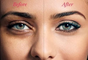 Get rid of dark circles under your eyes fast & permanently