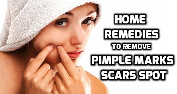 How To Remove Holes On Face Naturally