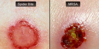 What is MRSA Staph Infection