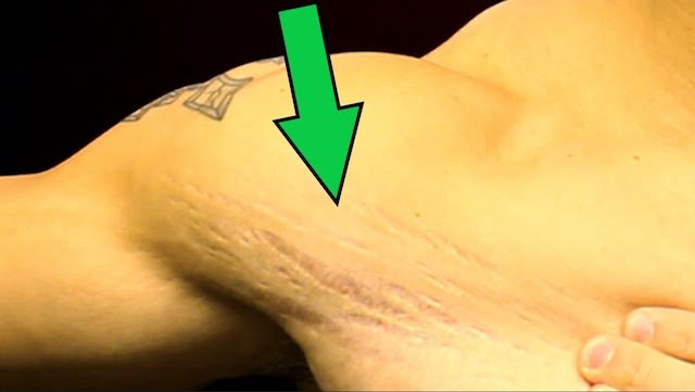 Cellulite and stretch marks removal