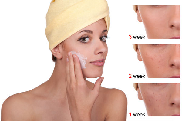 How To Avoid Acne Scars Naturally After Acne
