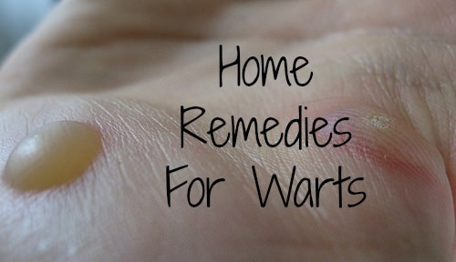 Natural Way To Get Rid Of Warts On Face