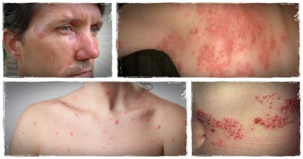 Shingles Treatment 19 Home Remedies For Shingles Pain Relief