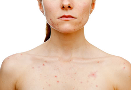 Get Rid of Chest Acne Home Remedies for Chest Acne