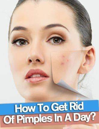 How to get rid of red marks from acne overnight
