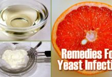 Home Remedies for Yeast Infection Treatment Naturally