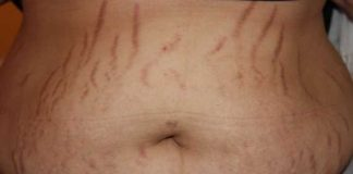 Remove Stretch Marks Fast and Naturally Home Remedies