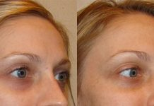 Get Rid of Dark Circles Under Eyes Naturally