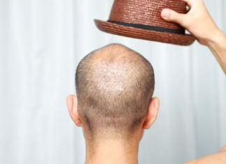 How to Prevent Hair Loss in Women and Men