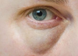 How to get rid of bags under eyes fast