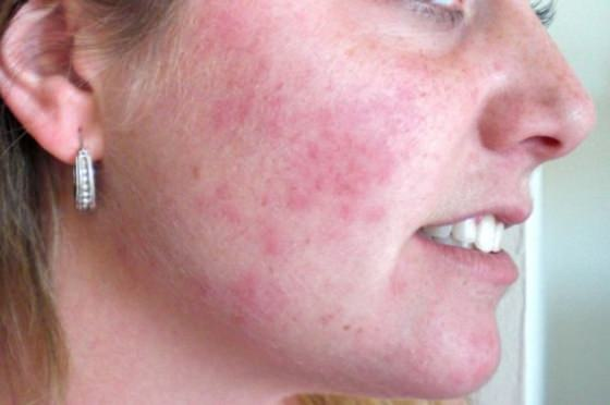 Facial skin rashes pictures