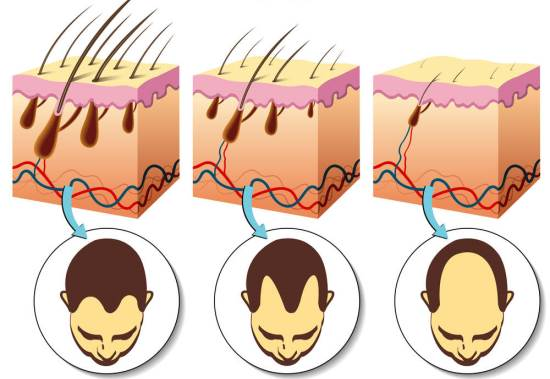 Home Remedies for Alopecia Treatment Naturally