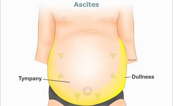 Ascites Alcoholic Liver Disease Stock Photo, Royalty Free Image ...