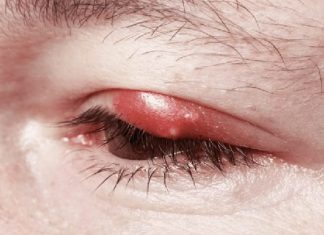 how to get rid of a stye overnight fast naturally