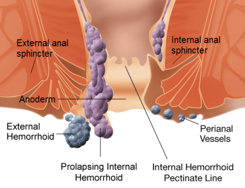 Home Remedies for Piles Hemorrhoids Treatment Naturally