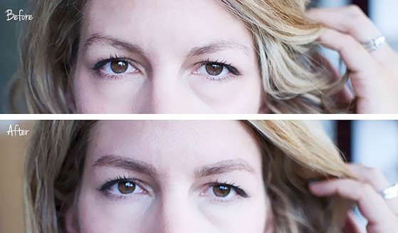 Home Remedies To Grow Eyebrows Faster