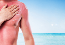 Home Remedies to Soothing Sunburn Treatments Naturally