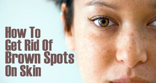 How to Get Rid of Brown Spots with Home Remedies