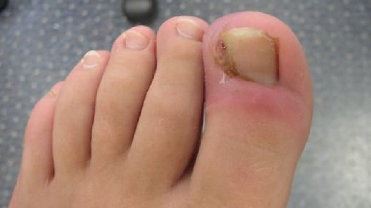 How to Get Rid of an Ingrown Toenail? (Remove Or Fix)