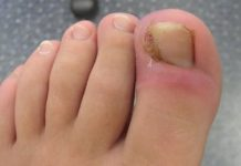 How to Get Rid of Ingrown Toenail at Home Yourself