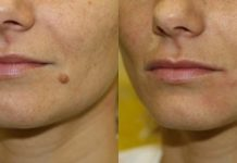 How to Get Rid of Moles Without Surgery
