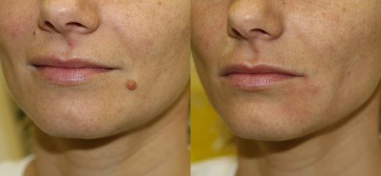 How to get rid of moles without surgery a understand the safest way to get rid of moles solutioingenieria Gallery