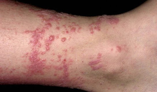 How To Get Rid Of Poison Ivy Naturally On Skin