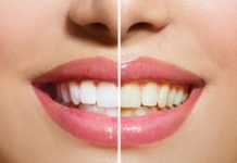 How to Use Hydrogen Peroxide to Whiten Teeth