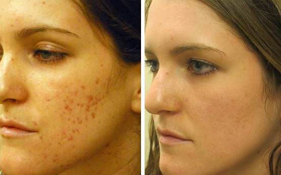 Dating with acne scars