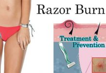 How to Prevent Razor Burn