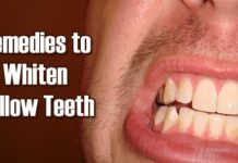 Natural Ways to Whiten Teeth at Home
