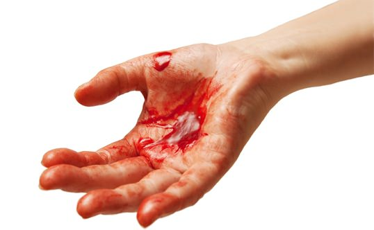 How to Stop Bleeding? (From Cuts and Internal Bleeding)