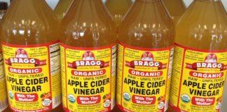 Apple cider Vinegar For Stretch Marks Removal Naturally
