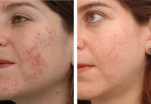 Home Remedies for Acne Scars Get Rid of Acne Scars