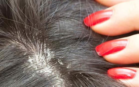 How to Get Rid of Dandruff at Home Home Remedies for Dandruff