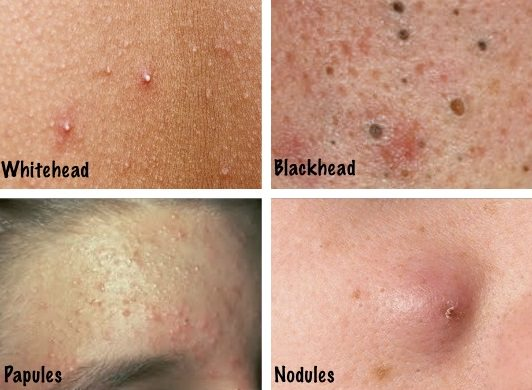 How To Get Rid Of Acne Marks At Home