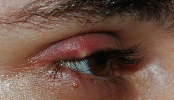 what is a stye on the eye how do we get stye