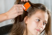 Home Remedies for Lice Treatment Simple and Effective