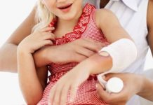 Home Remedies to Treat Burns at Home