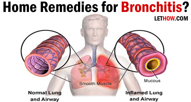 Chronic Bronchitis Natural Home Treatment