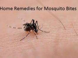 how to cure mosquito bites treatment for mosquito bites