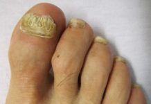 Home remedies for toenail fungus treatment