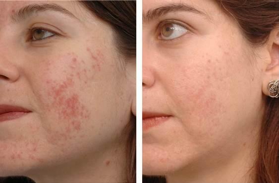 Homemade Acne Scar Treatment