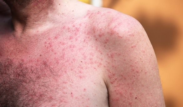 How To Make A Rash Go Away Overnight