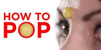 how to pop a pimple