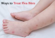 treat flea bites