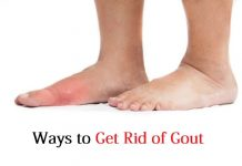 get rid of gout