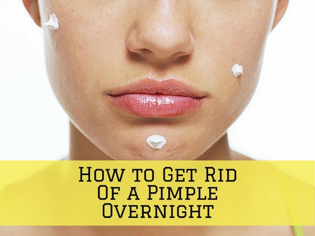 Who To Get Rid Of Pimples Overnight